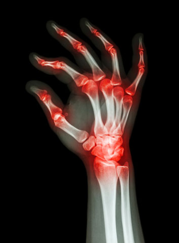 X-ray adult's hand with multiple arthritis